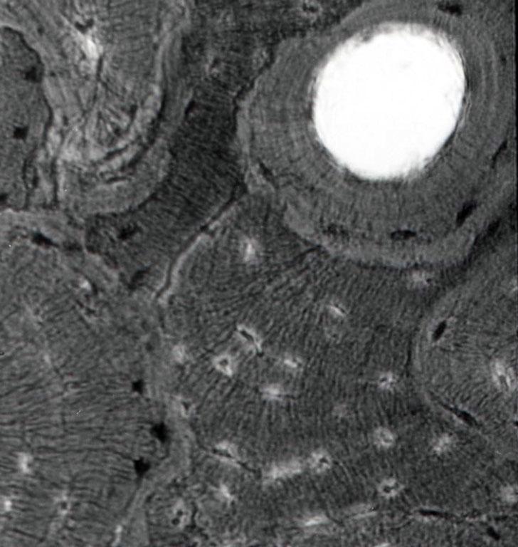 これは動物の硬骨組織と淡水植物プランクトンのケイ藻類との重複プレパラートだ。もちろん写真ではどちらか一方しか焦点が合わないわけで、この場合は硬骨組織にピントが合っている。 科学的根拠はほとんどないが、硬骨を形成するカルシウムは、生命現象を地球上に強く関係付けている物質である。有機的な物質というとぼくはどうしてもカルシウムを連想するのは、それによって作られる動物の骨、人も恐竜も共にその外形はいつも有機的だからかもしれない。 また、ケイ藻などは名の示す通り、細胞膜にはペクチン質を基本にしていても、それ以外はケイ酸化合物によって作られている。 ケイ酸イオンは、ぼくにはシリコンウエファーなどを連想させて、無機的なイメージが強い。共に高倍率では、結晶的な構造が強くて、生物における精神や意識の所在を、ふと考えさせられる。だからこのプレパラートは、ぼくにとっての無機と有機の生物学的結合なんだ。